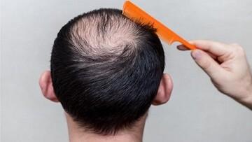 درمان ساده و فوری ریزش مو با این نوشیدنی تلخ