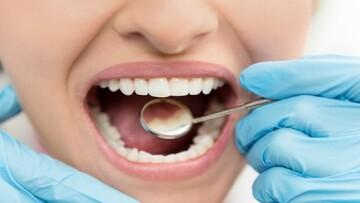 این علائم در دهان نشانه ابتلا به دیابت است
