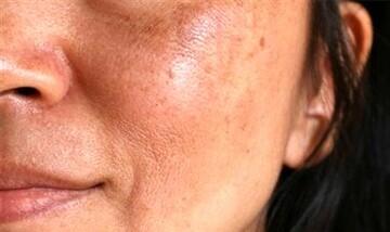 عوارض آرایش کردن را برای سلامتی بدن جدی بگیرد!