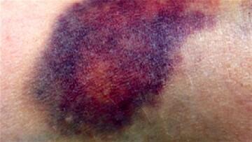 درمان کبودی بدن با چند ترفند ساده و خانگی