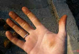 روش تمیز کردن سیاهی دست ناشی از گردو پاک کردن