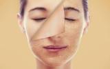 روش های برزیلی برای داشتن پوستی سالم