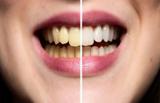 جرم گیری دندان در منزل