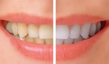 دندان هایتان را راحت سفید کنید