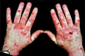 بدترین بیماریهای دنیا کدامند؟+ تصاویر