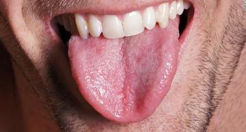 زبان چرب، عامل اصلی آپنه خواب