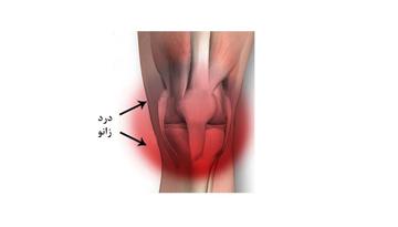 چرا زانوهادچار درد و آسیب دیدگی می شوند؟