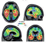 تشخیص آلزایمر با آزمایش خون