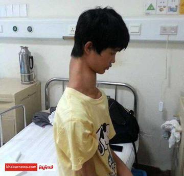 گردن زرافه ای پسر چینی+عکس
